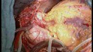 çok süper inanılmaz müthiş kalp damar ameliyatı gö
