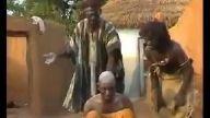 Afrikada Migren Tedavisi
