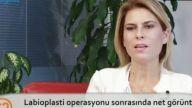 Opr. Dr. Burcu KARDAŞ ARSLAN Labioplasti operasyonu sonrasında net görüntü ne zaman elde edilir?