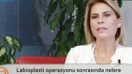 Opr. Dr. Burcu KARDAŞ ARSLAN Labioplasti operasyonu sonrasında nelere dikkat edilmelidir?