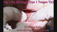 Tip 1 Ön Dil Bağı (Type 1 Tongue Tie) ve Belirtileri