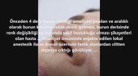 Burun Ucunda Emilmeyen Dikiş Materyallerine Bağlı Yabancı Cisim Reaksiyonları ve Ciltte Fistüller