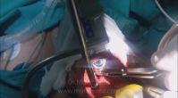 Kansız Bademcik Ameliyatı