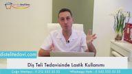 Diş Teli Tedavisi ve Lastik Kullanımı & Dr Onul Üner