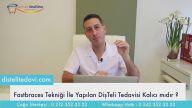 Fastbraces Diş Teli Tedavisi Kalıcı Mı & Dr Onul Üner