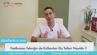 Fastbraces Tekniğinde Kullanılan Estetik Diş Telleri & Dr Onul Üner