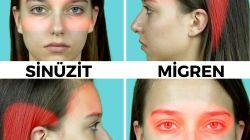 Türüne göre baş ağrısını geçiren akupunktur noktaları