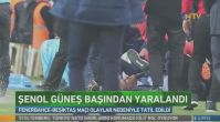 Fenerbahçe-Beşiktaş derbisinde Şenol Güneş yaralandı! 5 dikiş atıldı