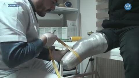 Gaziantep'teki Protez Merkezi Suriye Savaşının Kurbanları İçin Çalışıyor ile ilgili görsel sonucu